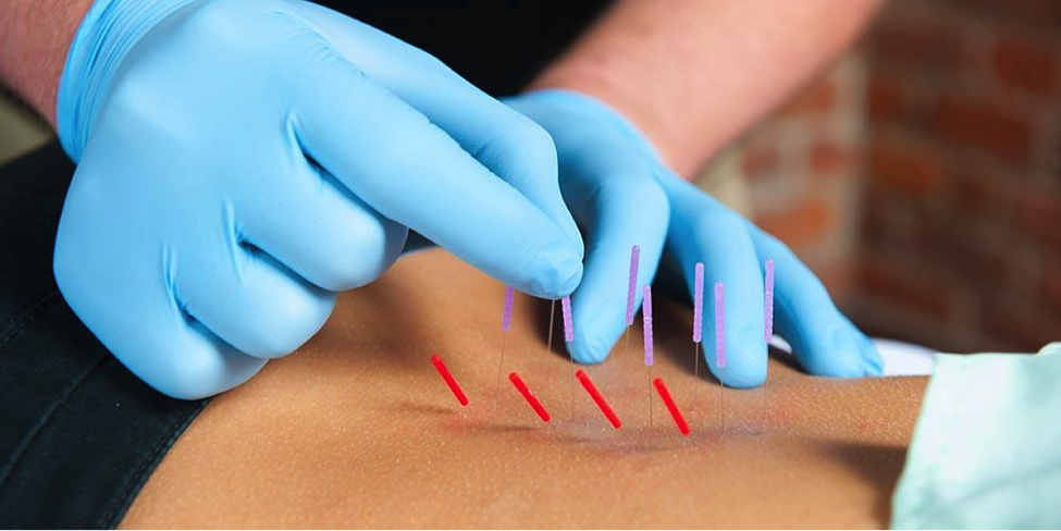 What is Dry Needling and how can it help you be a better athlete?